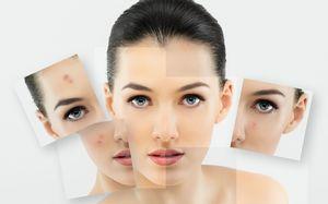 Долой бледность, или как улучшить цвет лица?