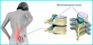 Грыжа межпозвоночного диска: симптомы проявления, лечение консервативными, оперативными и народными методами