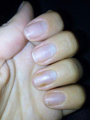 Эксперты рассказали о способах восстановления ногтей