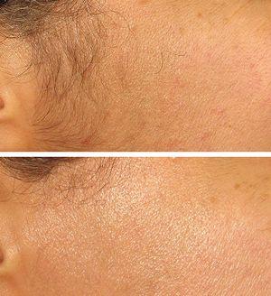 Эпиляция волос на лице