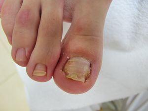 Как бороться с проблемой вросшего ногтя