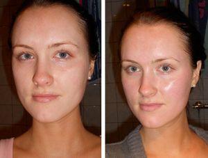 Как бороться с шелушением кожи