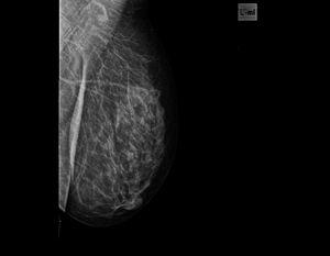 Как часто можно делать маммографию?