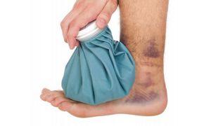 Как лечить растяжение связок голеностопа?
