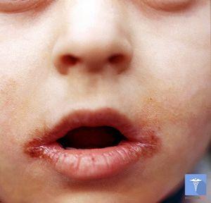 Как лечить заеды в уголках рта?