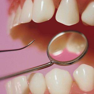 Как вырвать зуб в домашних условиях?