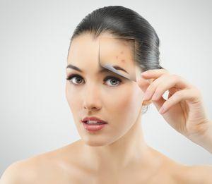 Какие косметические проблемы решает озонотерапия