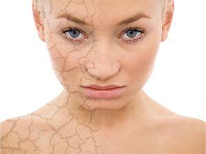 «Красны девицы»: аллергия на косметику