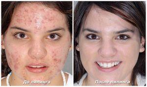 Мануальная и химическая чистка лица: плюсы и минусы