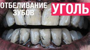 Насколько эффективно отбеливание зубов при помощи активированного угля