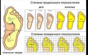 Ноги и ступни ног