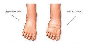 Почему отекают ноги в жаркую погоду