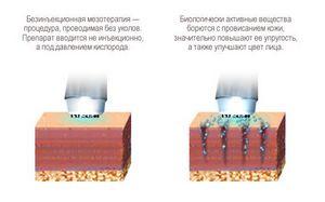 Преимущества безинъекционной мезотерапии