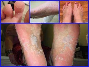 Причины и способы устранения шелушения кожи на ногах