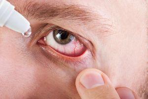 Причины и устранение последствий лопнувших сосудов глаз