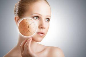 Сухая кожа: правила повседневного ухода