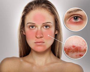 Угри розовые (розацеа)лечение народными средствами, симптомы